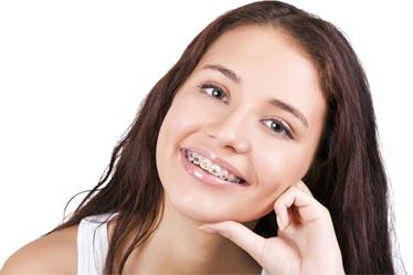 Безплатни ортодонтски прегледи и консултации.