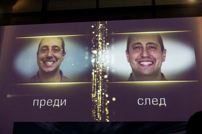 """Усмивка на годината 2019 в категорията """"Ортодонтски случай с алайнери"""", DSDent дентална клиника"""